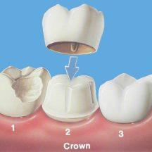 622899-dental-crown-580×580