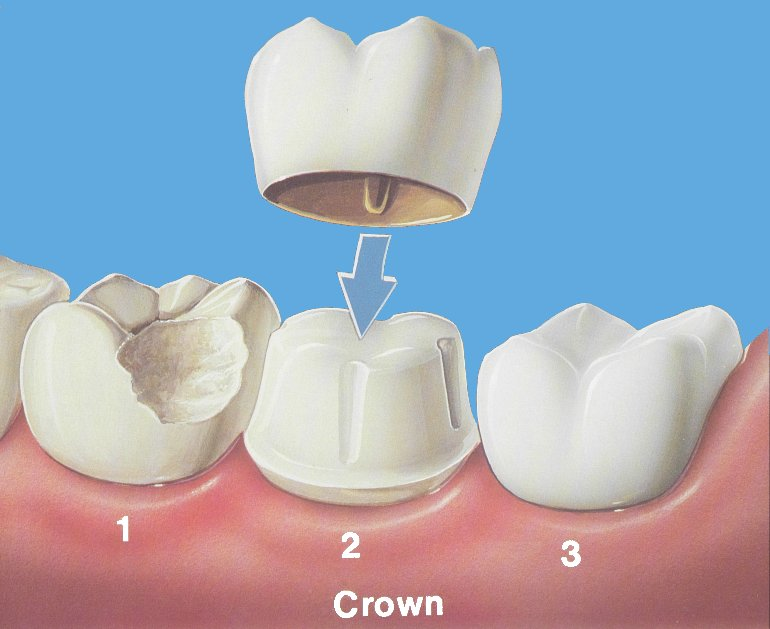 622899-dental-crown