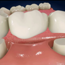 Dental-Bridge-580×580