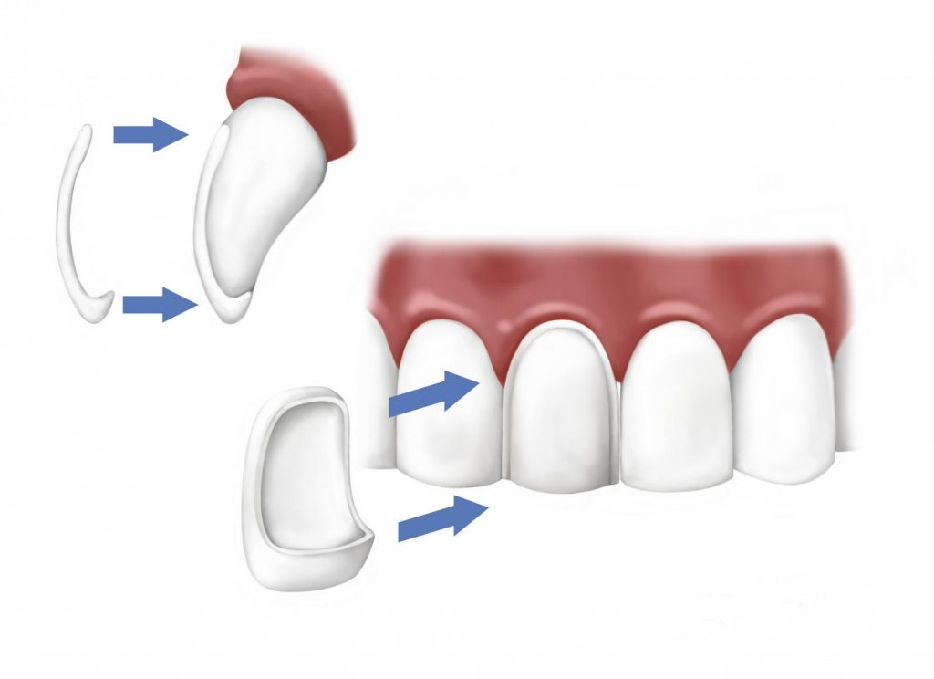 Porcelain-veneers-procedure3-1024×744