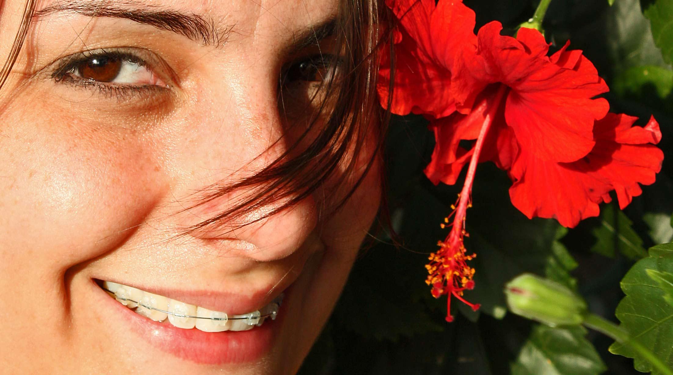 braces-flower-smile