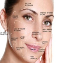 dermal-fillers-face-map-495×400