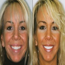porcelain-veneers-before-and-after-headshot