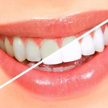 teeth-whitening3-580×580
