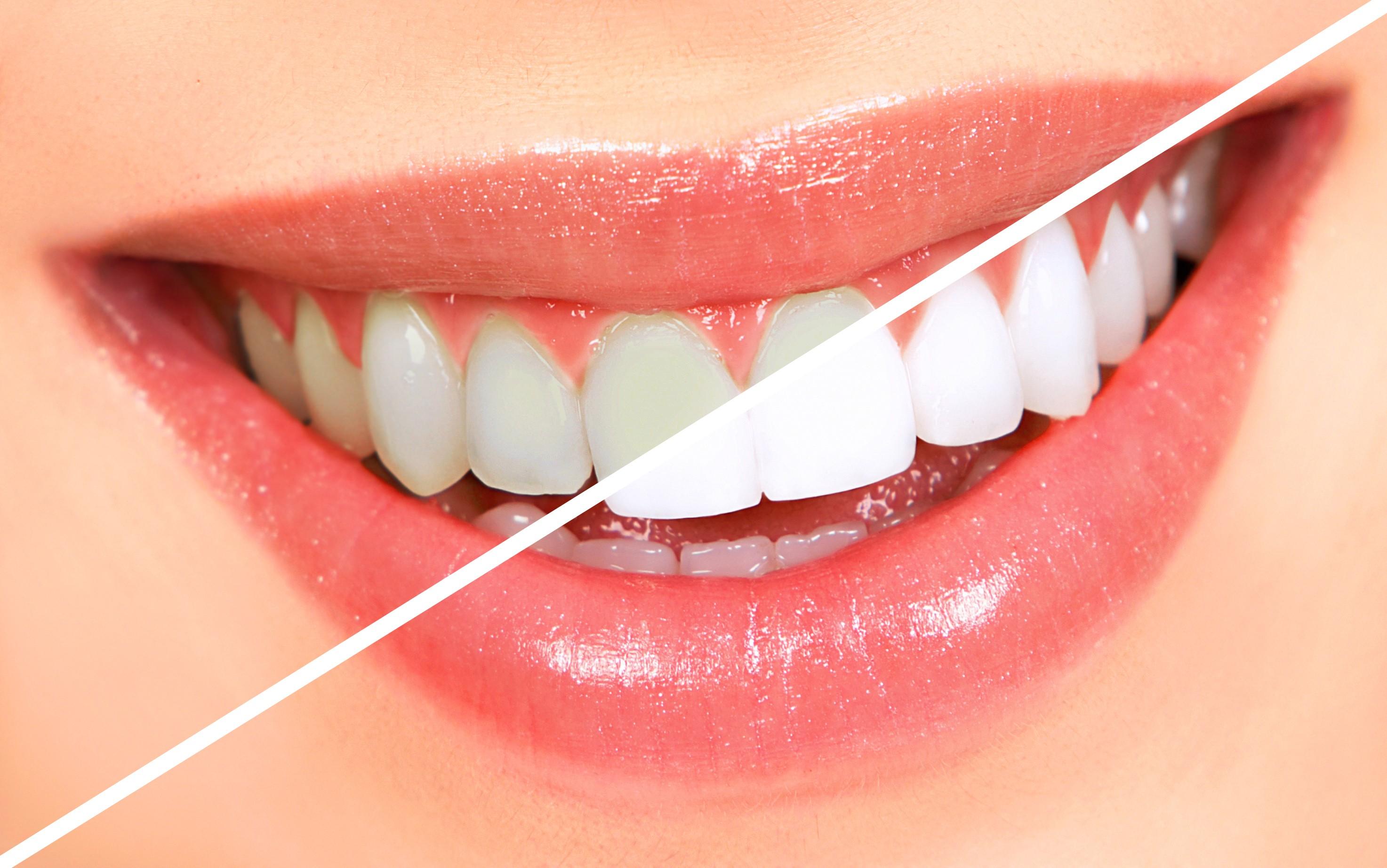 teeth-whitening3