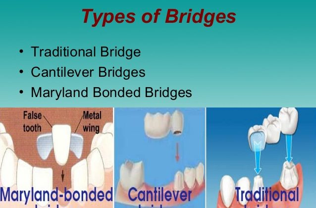 ALL ABOUT DENTAL BRIDGES