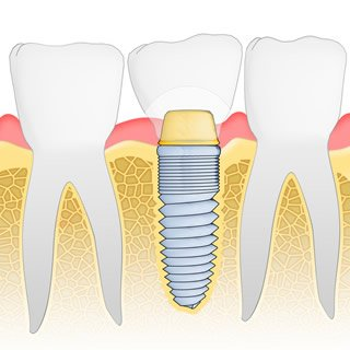 implant-diagram1