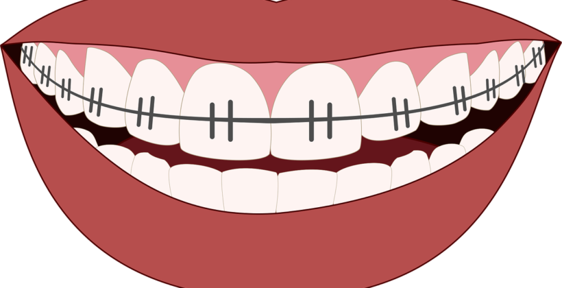 Invisible or Traditional Braces – Part 1