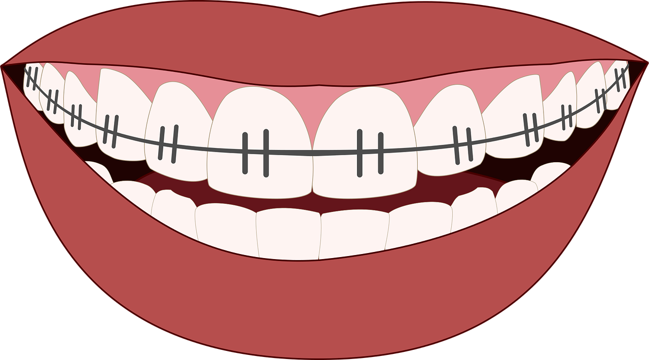 traditional or invisible braces