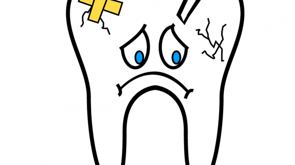 A Cracked or Broken Tooth
