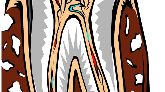 Root Canal – What's True?