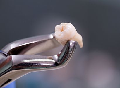 All about your tooth removal
