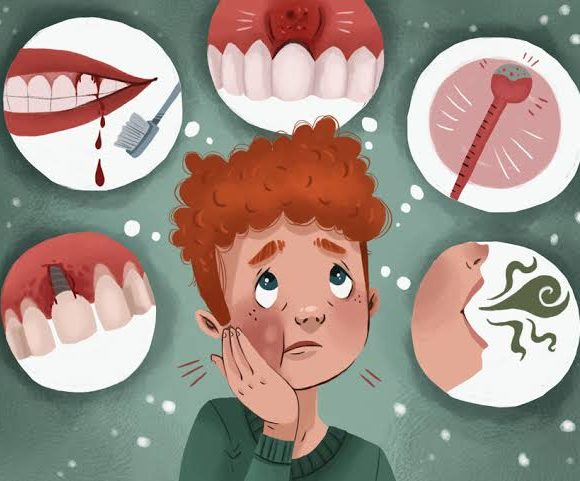 Everything You Should Know About Periodontal Diseases