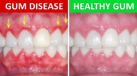 Periodontal Disease – The Silent Killer
